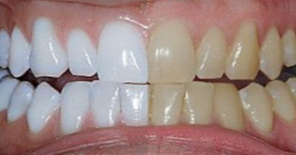 dents_blanche_d