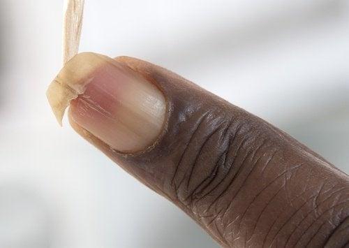 Ongles-fragiles-et-casses-500x355-500x355
