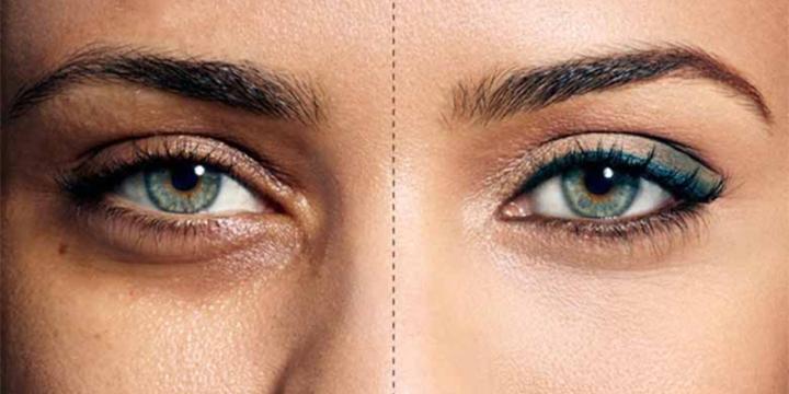 Traitements-naturels-pour-enlever-les-cernes-et-poches-sous-les-yeux